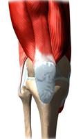 Коленный Бурсит Как лечится бурсит коленного сустава?
