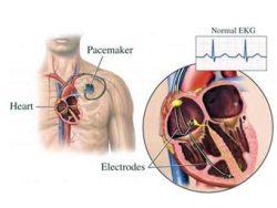 Все что связано с кардиостимулятором