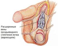 По каким данным в спермограме различают жидкая или густая сперма
