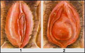 При беременности опухла половая губа