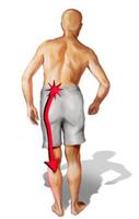 Лечение воспаления седалищного нерва в домашних условиях отзывы
