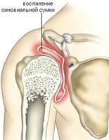 Воспаленная синовиальная сумка плечевого сустава (указана стрелкой) .