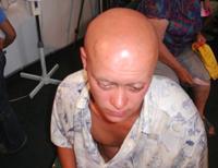 Типичная боль при приступе стенокардии