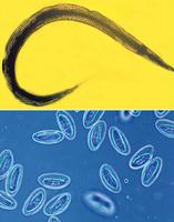паразиты в мочевом пузыре лечение