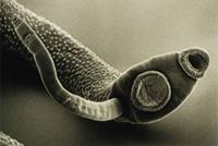 хильда кларк лечение паразитов