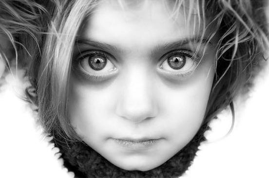 Раскосые глаза у детей 93