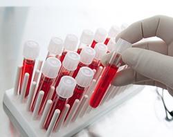💊Анализы на гормоны: ТТГ, Т4, АТ к ТПО. Какие анализы сдавать не нужно. Гормоны щитовидной железы: расшифровка анализов.