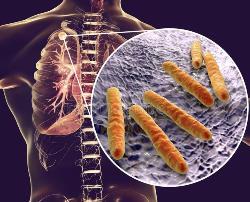 Диаскинтест – что это за тест на туберкулез, оценка результатов