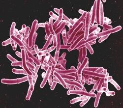 Диаскинтест (д тест) - точный метод выявления туберкулеза