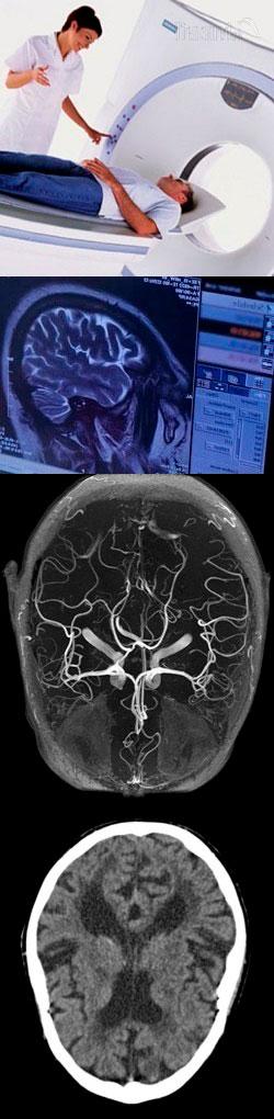 Компьютерная томография головного мозга – норма, расшифровка результатов, где сделать, цена исследования, отзывы. В чем разница между КТ и МРТ мозга? КТ сосудов головного мозга.