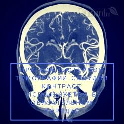 КТ головного мозга: стоимость, что показывает, противопоказания