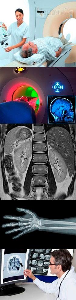 В чем разница МРТ и КТ, что безопаснее МРТ или КТ, какое отличие между КТ и МРТ