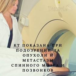 Компьютерная томография (КТ) позвоночника – суть исследования, виды (шаговая, СКТ, МСКТ), с контрастом и без контраста, показания и противопоказания, побочные эффекты, отличия от рентгена