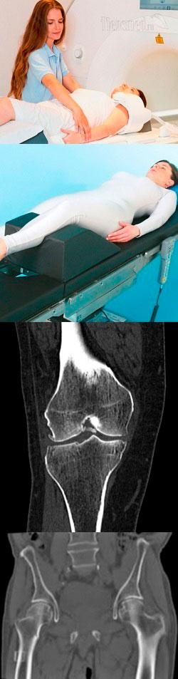 Что лучше - МРТ или КТ коленного сустава