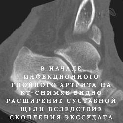 Мрт или кт тазобедренного сустава