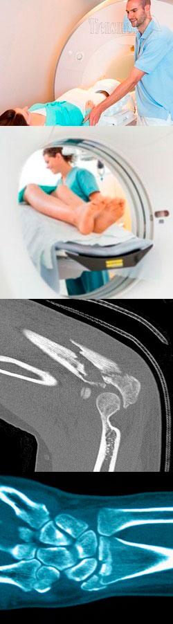 Диагностика кт коленного сустава,что показывает кт коленного сустава