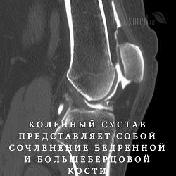 КТ коленного и других суставов как подготовится и сколько длится компьютерная томография