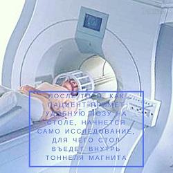МРТ головного мозга: сколько по времени длится томография головы, как ее делают, что она покажет?