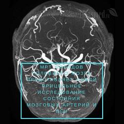 МРТ сосудов головного мозга — описание обследования с адресами клиник