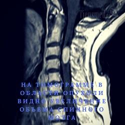 МРТ поясничного отдела позвоночника, что показывает 🚩 показания, как делают, расшифровка МРТ поясницы