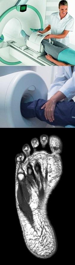 Что покажет мрт стопы