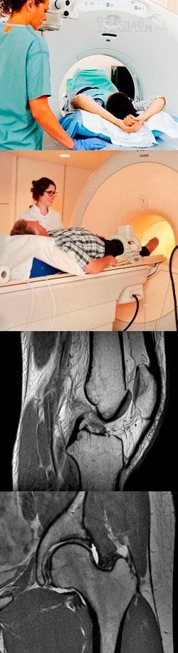 Особенности проведения МРТ локтевого сустава