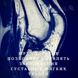 МРТ суставов, что показывает🚩как проходит, подготовка, расшифровка фотоснимков МРТ суставов