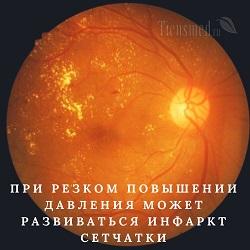 Как проверяют глазное дно и что показывает исследование