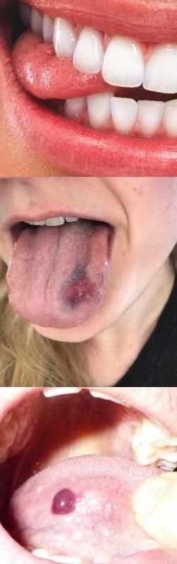 Что делать если ребенок порезал язык?