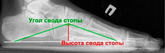 Как делают рентген пятки: возможности процедуры при выявлении патологий