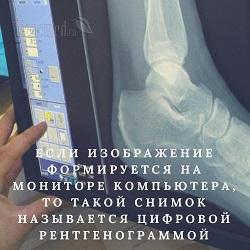 Рентген стопы – что показывает, в каких проекциях делают. Рентген с нагрузкой (в двух проекциях, для военкомата). Выявление патологии пальцев, костей, суставов, мышц, связок и сухожилий стопы (фото)