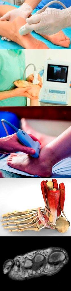 В чём преимущества УЗИ стопы и что обычно показывает такой метод обследования? Что показывает протокол УЗИ голеностопного сустава