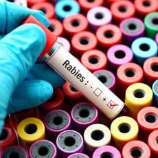 Заболевания передающиеся воздушно капельным путем список