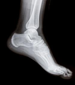 О переломе мизинца на ногах