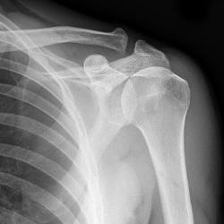 Периартроз плечевого сустава рентген