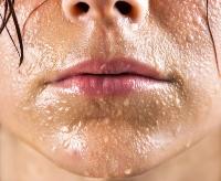 Связь климакса с остеохондрозом - Климакс