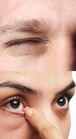 Почему постоянно дергается глаз верхнее веко