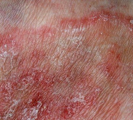 Эпидермофития лечение мазь 33