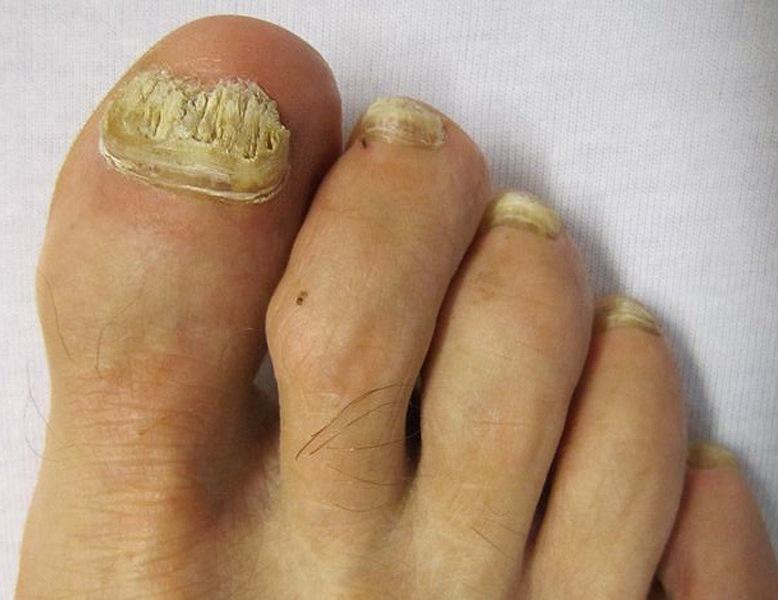 Экзодерил от грибка ногтей - отзывы, цена, аналоги