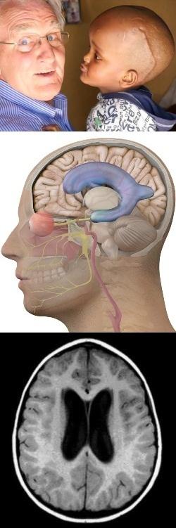 Гидроцефалия (водянка головного мозга) – что это такое, причины ...