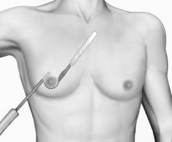 Липомастия: чем отличается от гинекомастии, причины появления у мужчин, лечение в косметологической клинике, без операции препаратами  
