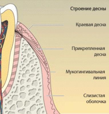 Симптомы острого и хронического гингивита, лечение и профилактика заболевания десен у взрослых. Гингивит — признаки, причины, лечение и профилактика