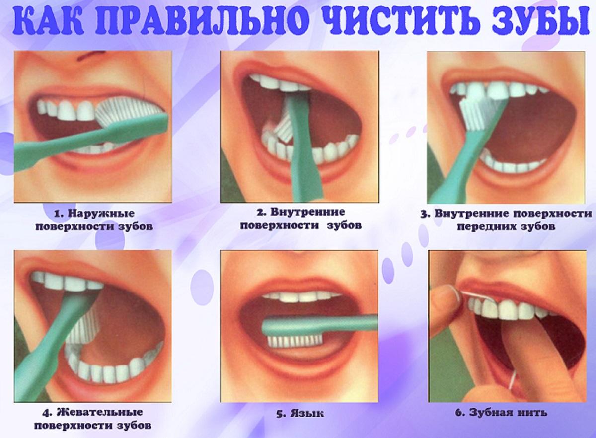 Лечение десен пародонтит гингивит