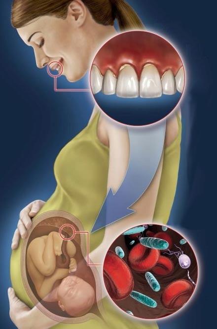 Лечение катарального гингивита