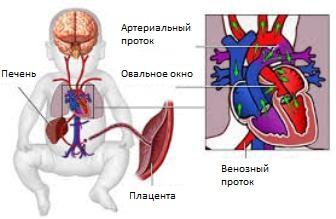 Что такое внутриутробная гипоксия