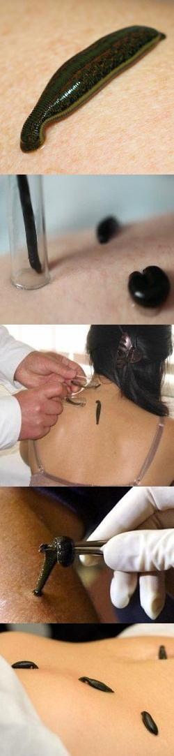 Пиявки от тромбов: нетрадиционное лечение тромбоза
