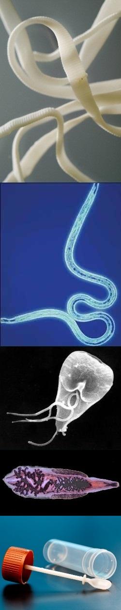 Как выглядят гельминты в кале у человека