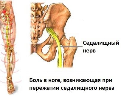 Седалищный нерв воспаление симптомы лечение фото