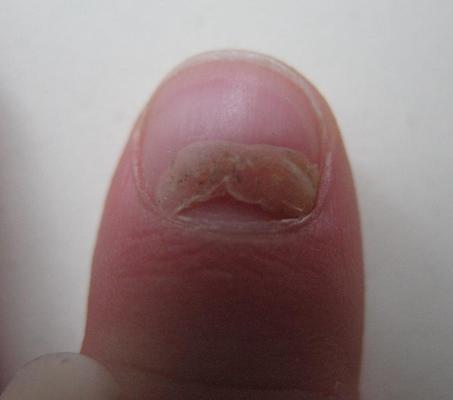 Как вылечить грибок на ногах под ногтем