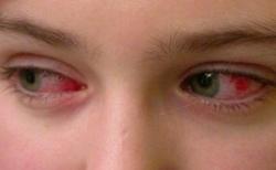 Вирус коксаки у детей: симптомы и лечение ребенка